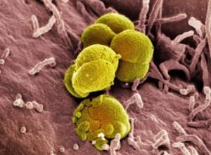 gonorrhea_bacteria