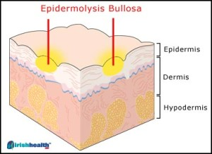 epidermolysis